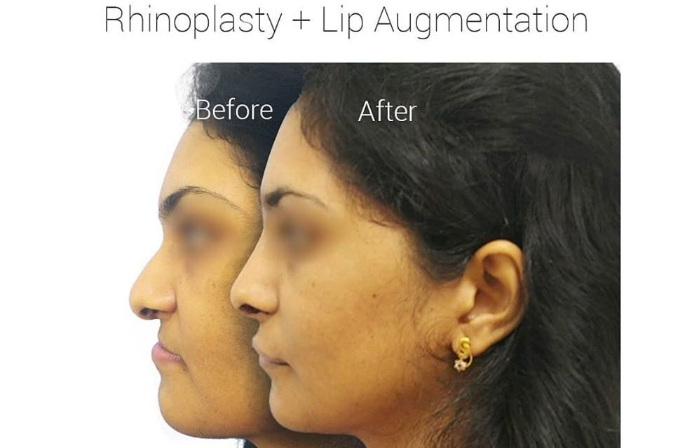 Rhinoplasty + lip augmentation.